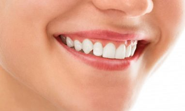Les principaux systèmes de numérotation des dents connus